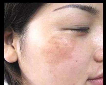 女人祛妇科病要靠艾灸,艾灸可助女人青春不老!